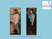 LOSE 3O POUNDS IN 30 DAYS (305)575-1752 MIAMI, DORAL, KENDALL - Busco Empleo - Miami